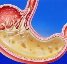 Блюда и продукты для снижения кислотности желудка