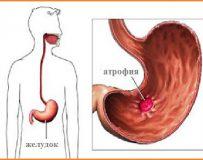 Этапы лечения при хроническом атрофическом гастрите
