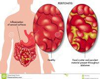Причины развития гнойного перитонита
