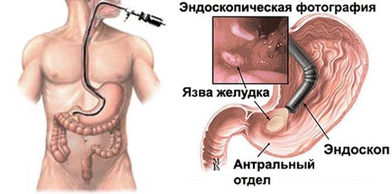 Как проверить желудок без глотания зонда?