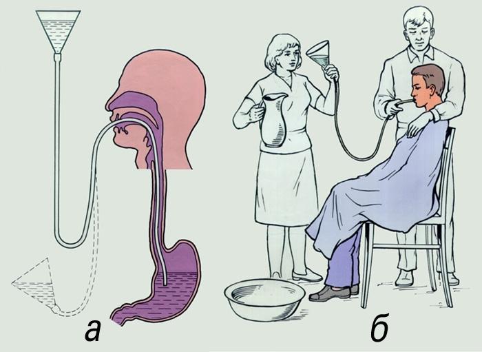Как сделать клизму желудка