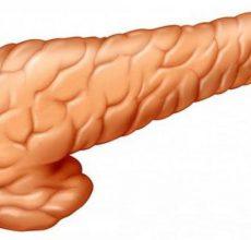 Жизнь после удаления поджелудочной железы
