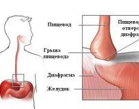Можно ли вылечить грыжу пищевода без операции?
