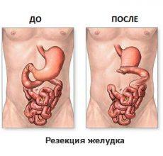 Какой диеты надо придерживаться при раке желудка?