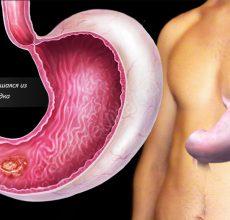 Виды, симптомы и методы лечения опухолей желудка