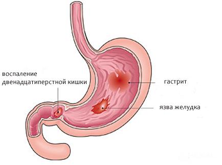 Проявления воспалений желудка