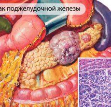 Сколько живут с раком поджелудочной железы 4 стадии?