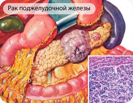 Злокачественная опухоль