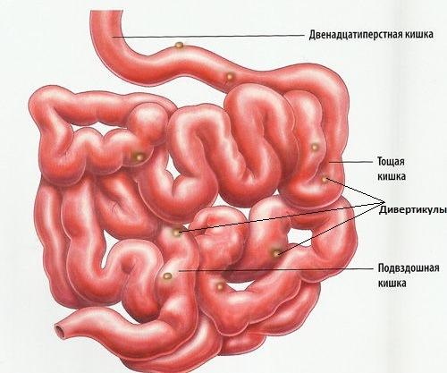 Диета при дивертикулезе кишечника – питаемся правильно