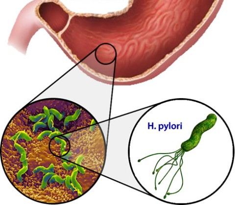 Хеликобактер пилори - основная причина заболеваний слизистой