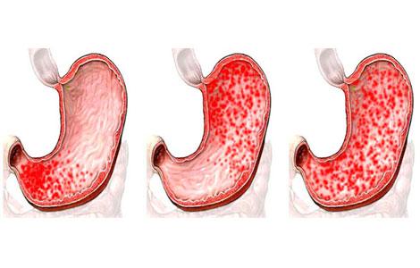 Эрозивный гастрит: симптомы, лечение и диета