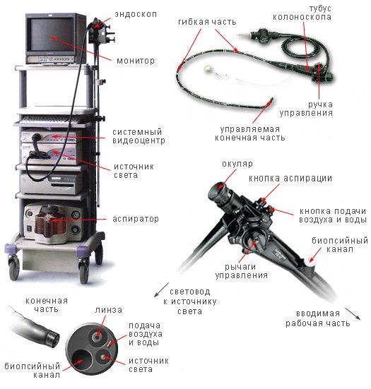 Эндоскоп для проведения процедуры обследования