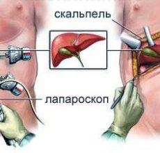Проведение и последствия операции на поджелудочной железе