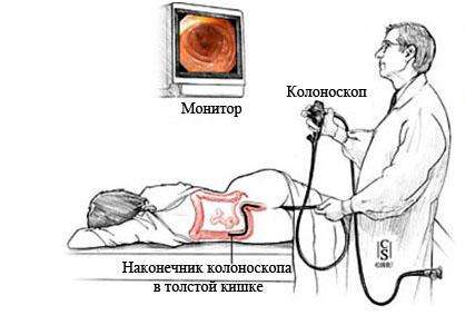Колоноскопия во сне – стоит ли делать?
