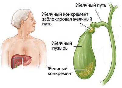 Блокировка желчного канала