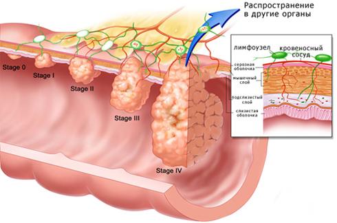 4 стадии развития опухоли