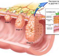 Поражение раком желудка 4-ой стадии