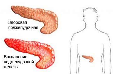 Воспаление органа