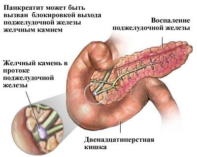 Панкреатит - воспаление поджелудочной