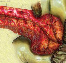 Обострение воспаления поджелудочной железы
