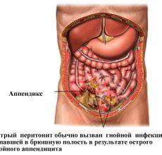 Причины и симптомы острого перитонита