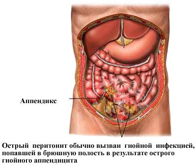 Гнойная инфекция