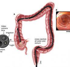 Соблюдение бесшлаковой диеты перед колоноскопией