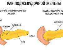 Трудности лечения рака поджелудочной железы