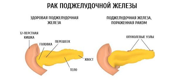 Железа, пораженная раком