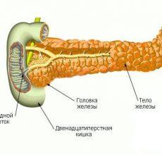 Какие симптомы при обострении приступа поджелудочной железы?