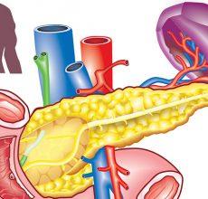 Что нужно делать для профилактики заболеваний поджелудочной железы?