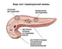 Симптомы и лечение полипа в поджелудочной железе