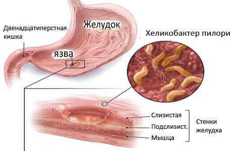 Заражение бактериями