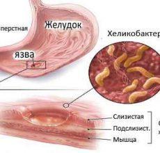 Чем снять боль при язве желудка?