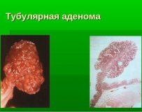 Как лечить тубулярную аденому толстой кишки?