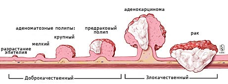 Аденокарцинома толстой кишки: прогноз, методы лечения