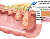 Какой первый симптом рака прямой кишки?