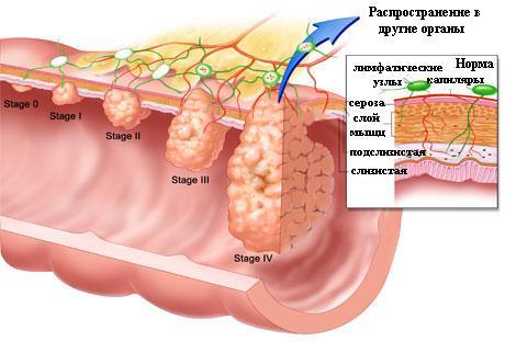 Стадии развития опухолей