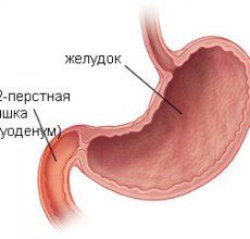 Симптомы и лечение поверхностного дуоденита