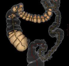 Точные ли результаты дает виртуальная колоноскопия кишечника?