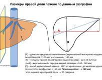 Самостоятельная расшифровка норм УЗИ брюшной полости