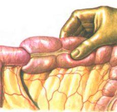 Проблема непроходимости кишечника у пожилых людей — что делать?