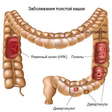 Поперечно-ободочная кишка: симптомы заболеваний и методы лечения
