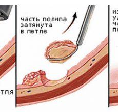 Симптомы и лечение опухоли прямой кишки