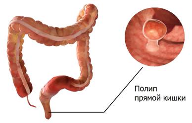 Нарост в кишечнике