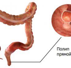 Какими методами удаляют полипы в кишечнике?
