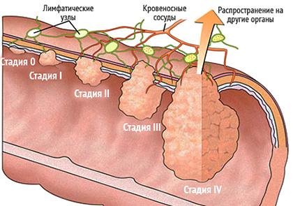 Опухоль сигмовидной кишки: симптомы, операция