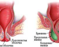 Симптомы и лечение заболеваний прямой кишки