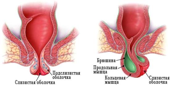Прямая кишка: симптомы и лечение заболеваний