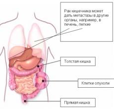 Прогноз при раке кишечника 4-ой стадии